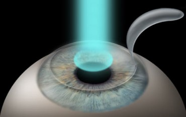 Lasik: Bladed vs. Bladeless LASIK